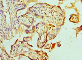 Immunohistochemistry(IHC) 2- ABAT Antibody