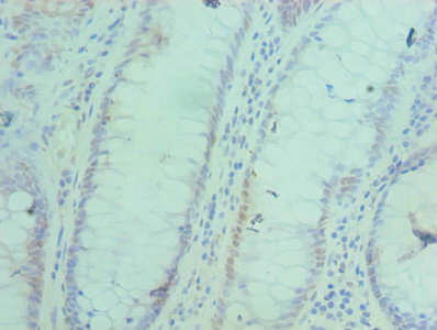 Immunohistochemistry(IHC) 2- ACTL6A Antibody