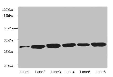 Western Blotting(WB) - BPGM Antibody