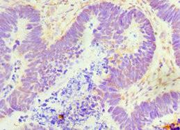 Immunohistochemistry(IHC) 1- GDF5 Antibody
