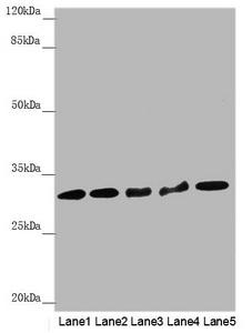 Western Blotting(WB) - HCCS Antibody
