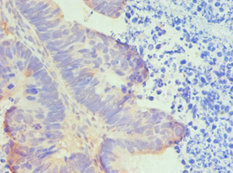 Immunohistochemistry(IHC) 1- HTRA2 Antibody