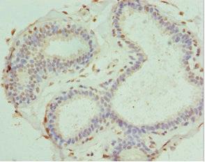 Immunohistochemistry(IHC) 1- PDXK Antibody