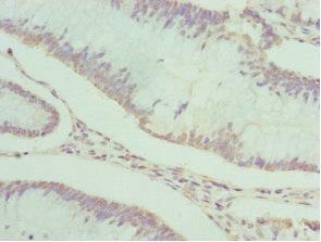 Immunohistochemistry(IHC) 2- PDXK Antibody