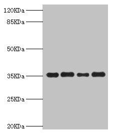 Western Blotting(WB) - PDXK Antibody