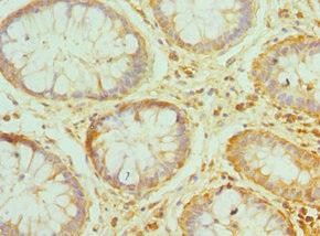 Immunohistochemistry(IHC) 1- PRDX1 Antibody
