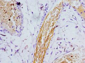 Immunohistochemistry(IHC) 1- PSEN1 Antibody