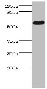 Western Blotting(WB) - PSEN1 Antibody