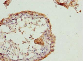Immunohistochemistry(IHC) 1- RAB5B Antibody