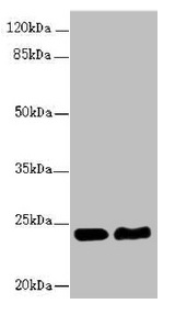 Western Blotting(WB) - RAB5B Antibody