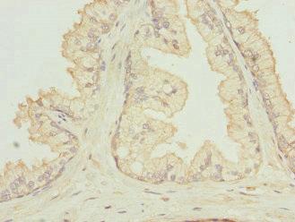 Immunohistochemistry(IHC) 2- RGS5 Antibody