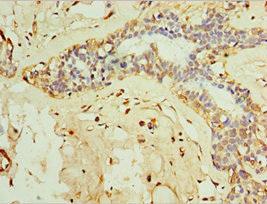 Immunohistochemistry(IHC) 1- IFNL3 Antibody