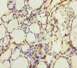 Immunohistochemistry(IHC) 1- CRBN Antibody