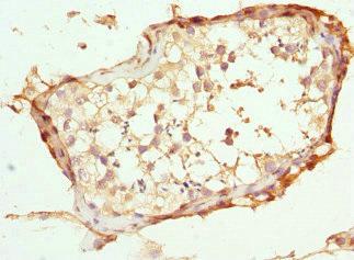 Immunohistochemistry(IHC) 1- ABCC11 Antibody
