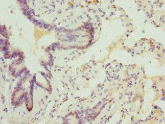 Immunohistochemistry(IHC) 1- ABCA3 Antibody