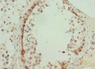 Immunohistochemistry(IHC) 2- ABCA3 Antibody