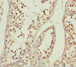 Immunohistochemistry(IHC) 1- ABCB8 Antibody
