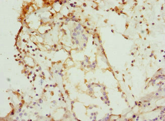 Immunohistochemistry(IHC) 1- CSNK1G1 Antibody