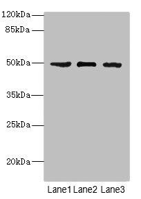 Western Blotting(WB) - CSNK1G1 Antibody