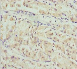 Immunohistochemistry(IHC) 1- PACSIN2 Antibody