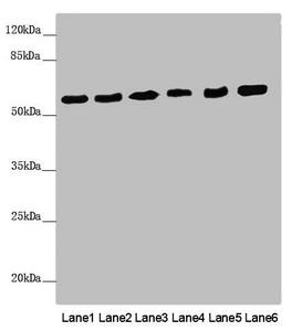 Western Blotting(WB) - PACSIN2 Antibody