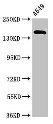 Western Blotting(WB) - A2ML1 Antibody
