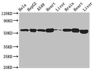 Western Blotting(WB) - ATP5B Antibody