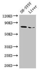 Western Blotting(WB) - CHAT Antibody