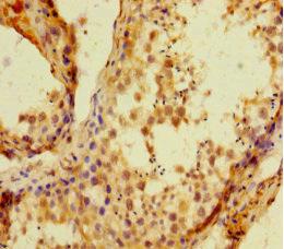 Immunohistochemistry(IHC) 2- HIST1H1C Antibody