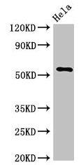 Western Blotting(WB) - KRT7 Antibody