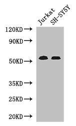 Western Blotting(WB) - TGFBR1 Antibody