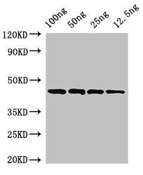 Western Blotting(WB) - speB Antibody