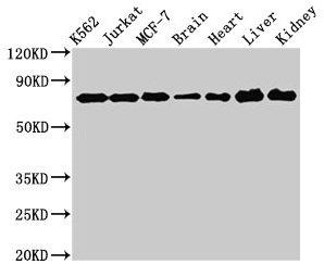 Western Blotting(WB) 2- DDX3X Antibody