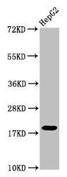 Western Blotting(WB) - Mono-methyl-H1F0 (K101) Antibody