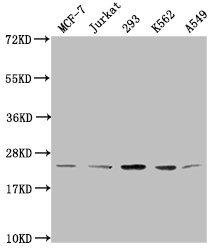 Western Blotting(WB) - Mono-methyl-HIST1H1C (K96) Antibody