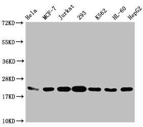 Western Blotting(WB) - HIST1H1C (Ab-96) Antibody