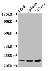 Western Blotting(WB) - HIST1H1D (Ab-146) Antibody