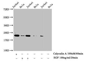 Western Blotting(WB) - Phospho-HIST1H1E (T17) Antibody