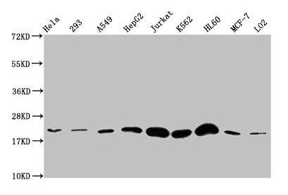Western Blotting(WB) - HIST1H1E (Ab-25) Antibody