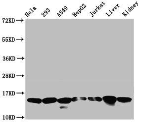 Western Blotting(WB) - HIST1H2AG (Ab-5) Antibody