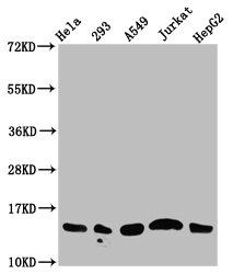 Western Blotting(WB) - Acetyl-HIST1H2AG (K13) Antibody