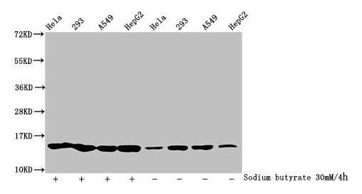 Western Blotting(WB) - Butyrly-HIST1H2BC (K5) Antibody