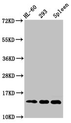 Western Blotting(WB) - HIST1H2BC (Ab-120) Antibody