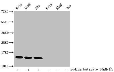 Western Blotting(WB) - Acetyl-HIST1H2BC (K15) Antibody