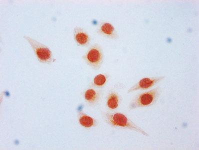 Immunocytochemistry(ICC) - β-hydroxybutyryl-HIST1H3A (K9) Antibody