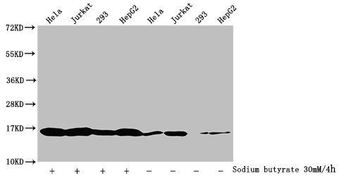 Western Blotting(WB) - Butyrly-HIST1H3A (K18) Antibody