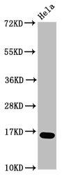 Western Blotting(WB) - Formyl-HIST1H3A (K23) Antibody
