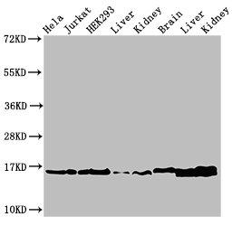Western Blotting(WB) - HIST1H3A (Ab-36) Antibody