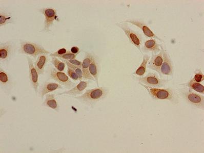 Immunocytochemistry(ICC) - Acetyl-HIST1H3A (K9) Antibody