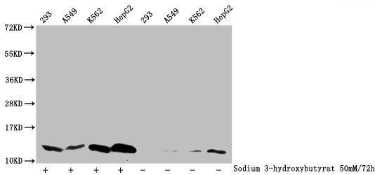 Western Blotting(WB) - β hydroxybutyryl-HIST1H4A (K5) Antibody